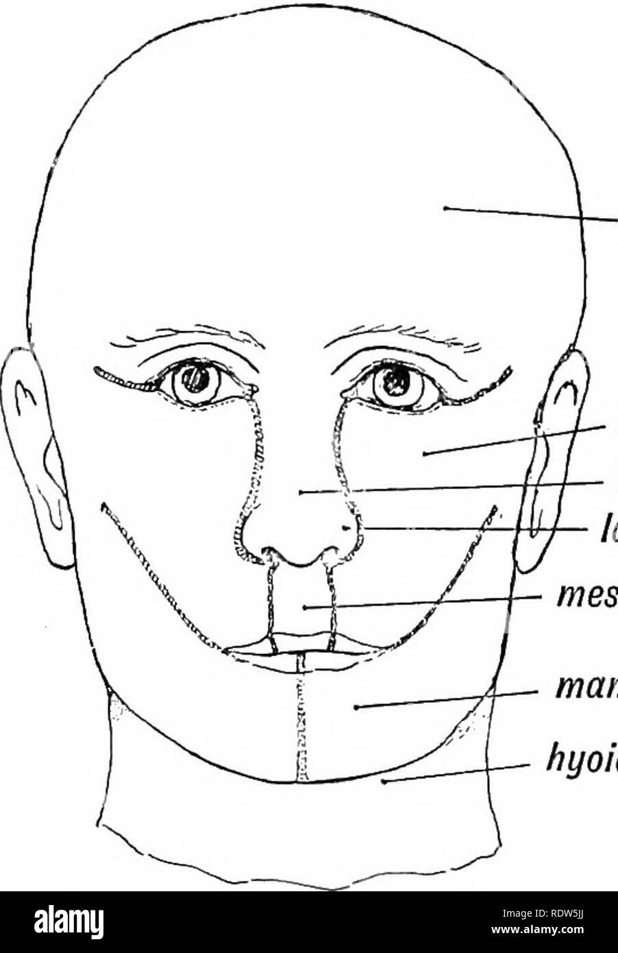 . Human embryology and morphology. Embryology, Human; Morphology. cerebrum maxillary process nasal field lat. nas. proc. mes. nas. proc. (proc. glob.) mandib. proc. hyoid arch Fig. 2.—Showing the parts of the face formed from the Nasal, Maxillary and Mandibular processes, ' processes, the labial part of the middle nasal process being undeveloped. Macrostoma is due to a partial failure of the. Please note that these images are extracted from scanned page images that may have been digitally enhanced for readability - coloration and appearance of these illustrations may not perfectly resemble the - Stock Image