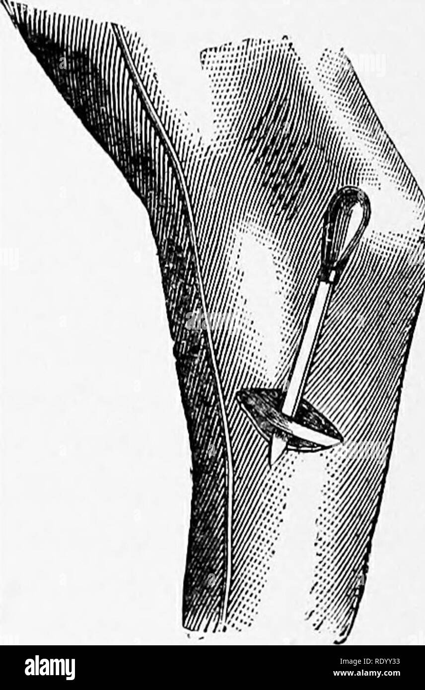 . Manual of operative veterinary surgery. Veterinary surgery. Fig. 338.—Tarsal Tenotomy. Cunean Tendon Exposed. Fig. 339.—Tarsal Tenotomy. The Tendon Kaised. across its direction. This incision is generally accompanied by a somewhat troublesome capillary hemorrhage, which ought to be controlled before proceeding further. The tendon may then be felt through its bursa, which is raised with the dissecting forceps and opened, when the tendon is readily exposed. The curved director is then inserted under the tendon, which is easily raised from its tract, and by guiding the tenotome along its groove Stock Photo