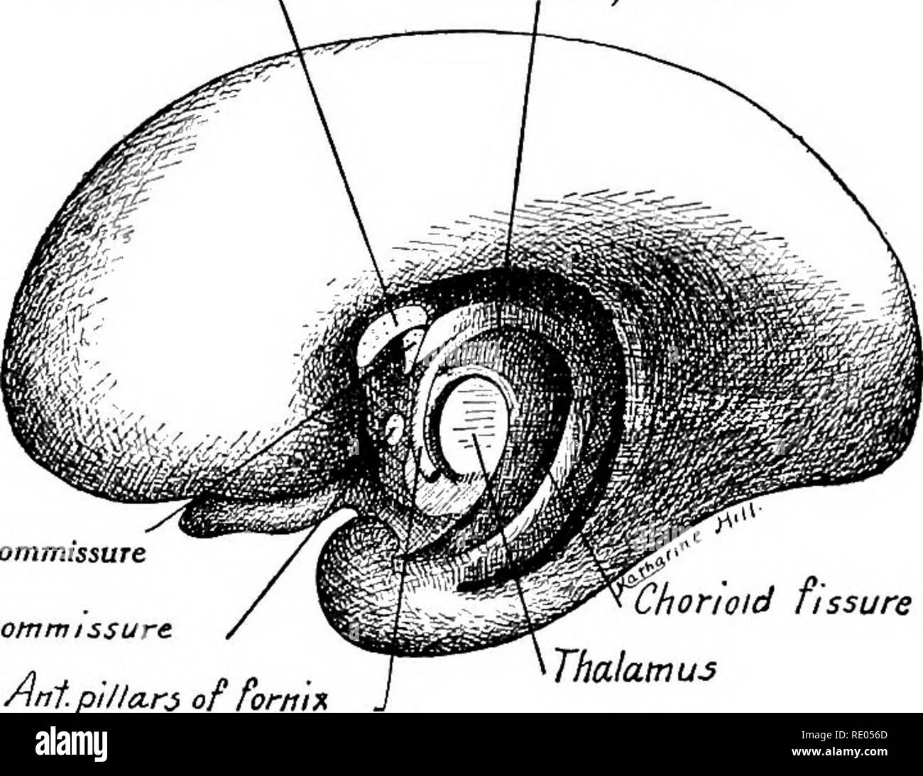 . A laboratory manual and text-book of embryology. Embryology. THE BRAIN 345 rhinencephalon. In this region fibers crossing the midline form the hippocampal commissure. Other fibers, as the anterior pillars of the fornix, curve ventrally and end in the mammillary body of the hypothalamus. The commissure of the hippocampus, originally cranial in position, is carried caudalward with the caudal extension of the corpus callosum (Fig. 333 B). Corpus callosum Body of fornix. Hippocampal commissure Anterior commissure Antpillars of fornix orwid fissure Thalamus Body of fornix Septum pellucidum Hippoc - Stock Image