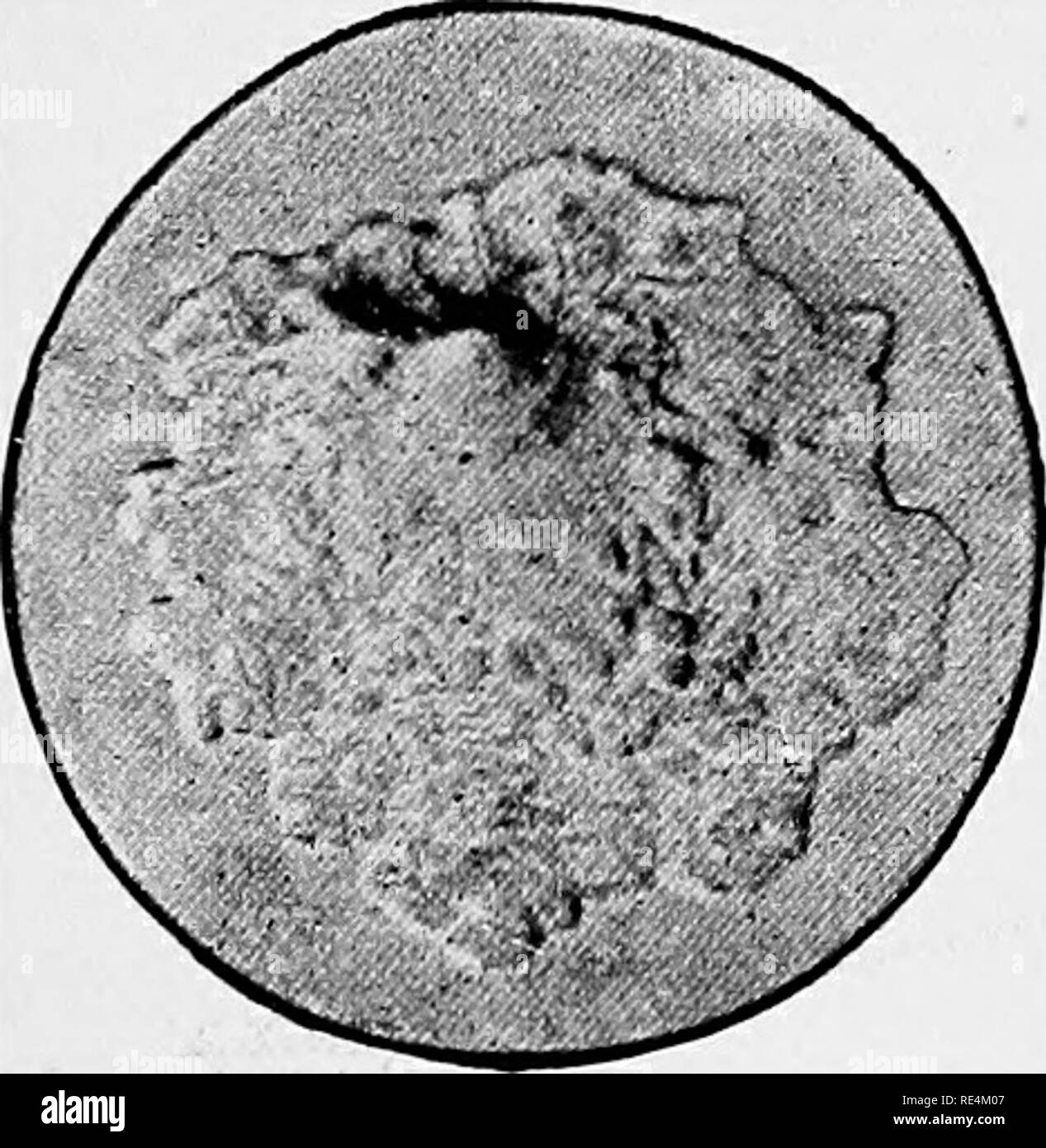 ". A text-book of bacteriology. Bacteriology. Fig. 108.—Bacillus typhi abdominalis. stained by Loffler'a method, showing flagella. X 1,000. From a photomicrograph by Frankel and Pfeiffer. Biological Characters.—The typhoid bacillus is a motile, aero- bic, non-liquefying bacillus, which grows readily in a variety of culture media at the "" room temperature."" Although it grows most abundantly in the presence of free oxygen, it may also develop in its absence, and is consequently a facultative anaerobic. In gelatin plate cultures small, white colonies are developed at the end of thirty-si - Stock Image"