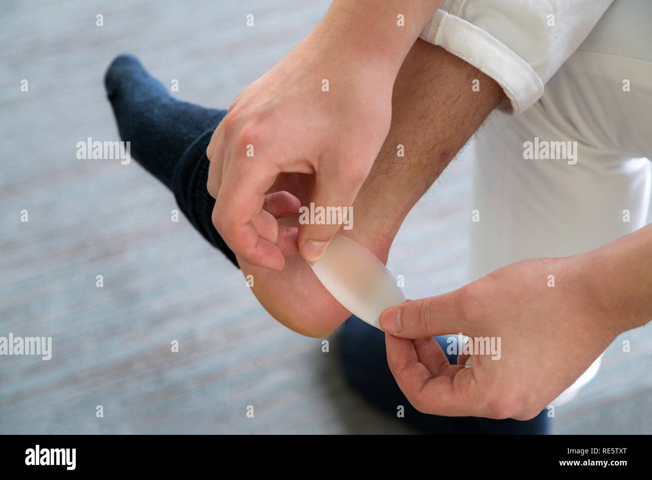 Painful Heel wound on mans feet caused by new shoes. mans hands applying plaster on terrible blister on human heel. Wet bloody painful skin on man foo - Stock Image