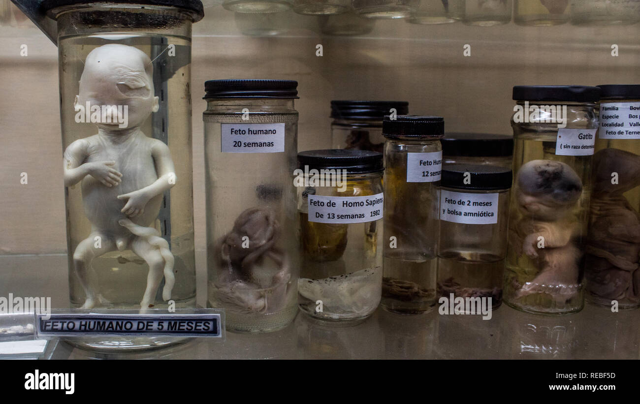 Scientific exhibition of the developmental stages of human embryo. Primary exhibit is a 5 month old miscarried fetus. La Salle Natural history Museum. - Stock Image