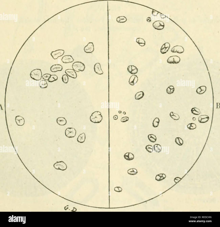 . Compte rendu. Science; Science -- Congresses. Fi-'. 3. Amidon de céréales. A. Farine de maïs. â B, Farine de seigle. â C, Farine de millet. (Grossissement, 100.). Fig. (. â Amidon et légumineuses. A, Farine de vesces. â B, Farine de lentilles. (Grossissement, loo.) Viande, charcuterie. â La falsification ne peut s'exercer sur les viandes que par la suhstiliiliun ou le mélange de viandes avariées à des viandes saines :. Please note that these images are extracted from scanned page images that may have been digitally enhanced for readability - coloration and appearance of these illustrat - Stock Image
