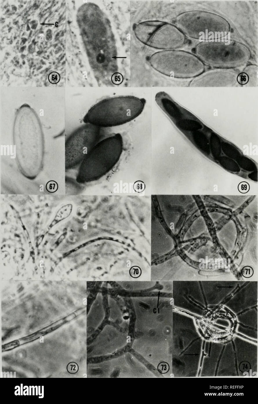 . Comparative ontogeny of Thelebolus, Lasiobolus, and Thecotheus (Pezizales, Ascomycetes). Fungi. 8U. Please note that these images are extracted from scanned page images that may have been digitally enhanced for readability - coloration and appearance of these illustrations may not perfectly resemble the original work.. Conway, Kenneth Edward, 1943-. - Stock Image
