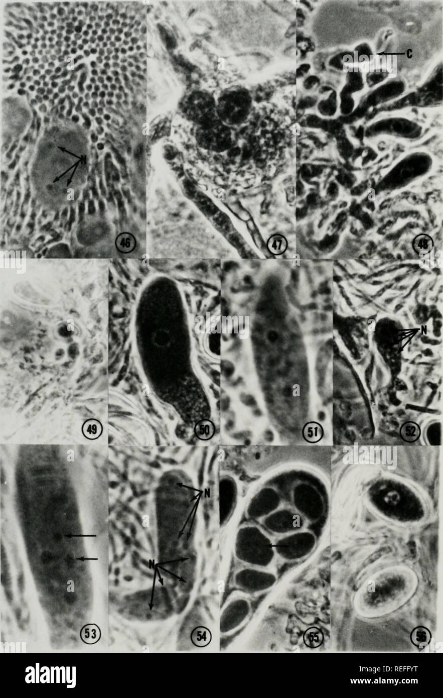 . Comparative ontogeny of Thelebolus, Lasiobolus, and Thecotheus (Pezizales, Ascomycetes). Fungi. 80. Please note that these images are extracted from scanned page images that may have been digitally enhanced for readability - coloration and appearance of these illustrations may not perfectly resemble the original work.. Conway, Kenneth Edward, 1943-. - Stock Image