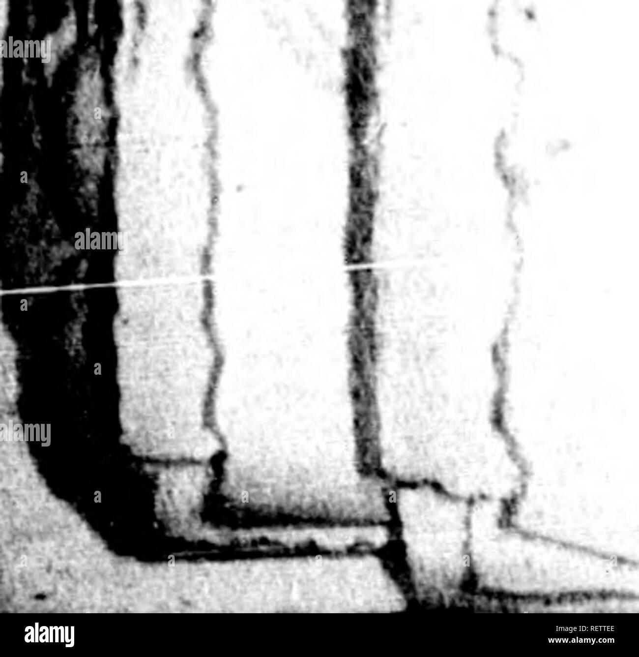 . Histoire naturelle de Buffon [microforme] : classée par ordres, genres et espèces, d'après le système de Linné avec les caractères géné riques et la nomenclature Linnéenne. Sciences naturelles; Anthropologie; Natural history; Anthropology. ' i?;?; ; f> 1, 1^ ^. % D E L' H O M M E. I ne le pas manifester de cette façon? Or, tiput cela n'arrive pas et n'est jamaia arrivé j le plus oujnoins de perfection des organes corporel^ n'inûae donc paa sur la nature des. sensation^ intérieur jres; jji'en doit-on pas conclure que Jeft  minimaux n'ont point de sensations '<le cette espà - Stock Image