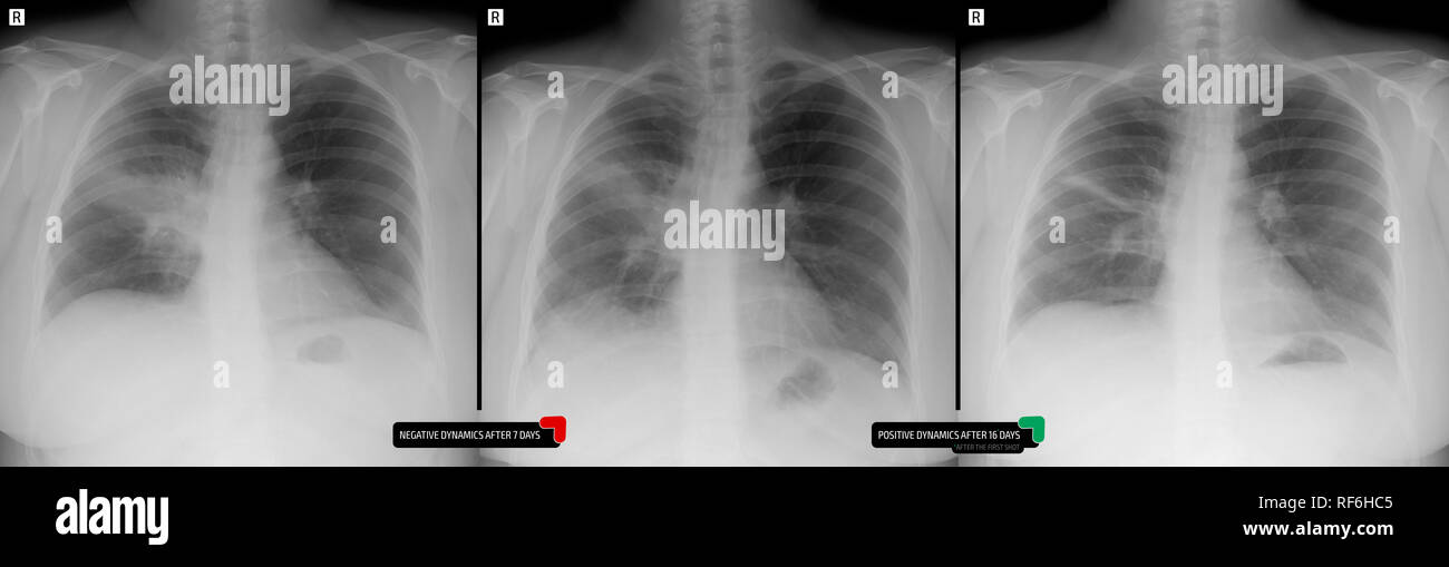 X-ray of the lungs. Pneumonia of the lung right. Marker. - Stock Image