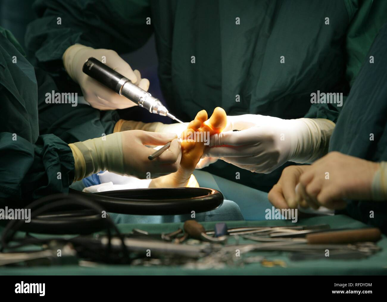 Surgery, correction of a foot - Stock Image