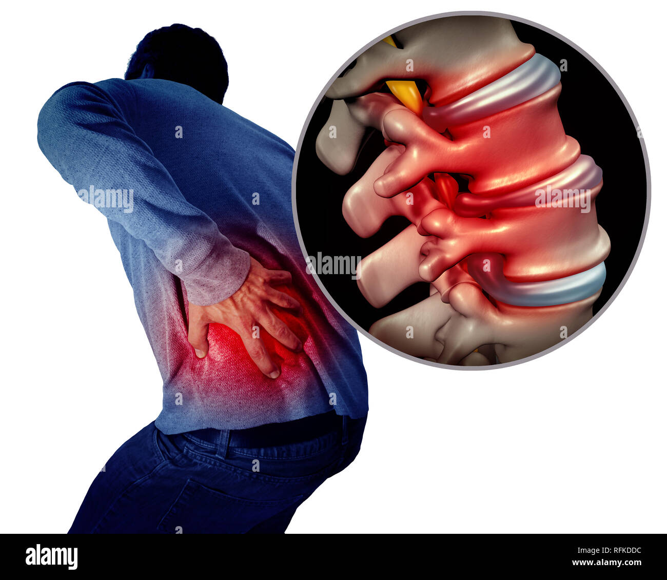 Lower back pain or backache and painful spine medical concept as a person holding the painful spinal area as a medical concept. - Stock Image