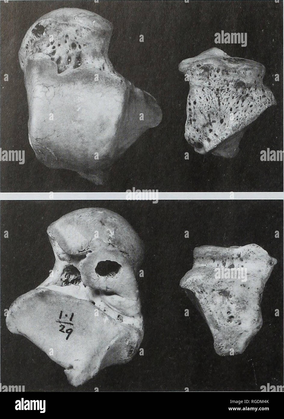. Bulletin of the Natural Histort Museum. Geology series. 18. Fig. 15 Dorsal (above) and plantar (below) views of the Gough's Cave 1 right talus and cuboid bone; x 0.9. Table 17 Osteometries of the Gough's Cave 1 right talus. 60.5 55.0 26.0 46.7 35.8 28.3 11.4 26.5 28.0 9.0 29.5 20.0 37.2 21.6 35.0 23.5 5° 23° 34° 41° 59° Maximum (lateral) length1 Length (M-l) Articular height (M-3b) Articular breadth (M-2b) Trochlear length (M-4) Trochlear breadth (M-5) Trochlear height (M-6) Lateral malleolar height- Lateral malleolar oblique height (M-7a) Lateral malleolar breadth (M-7) Lateral malleolar le Stock Photo
