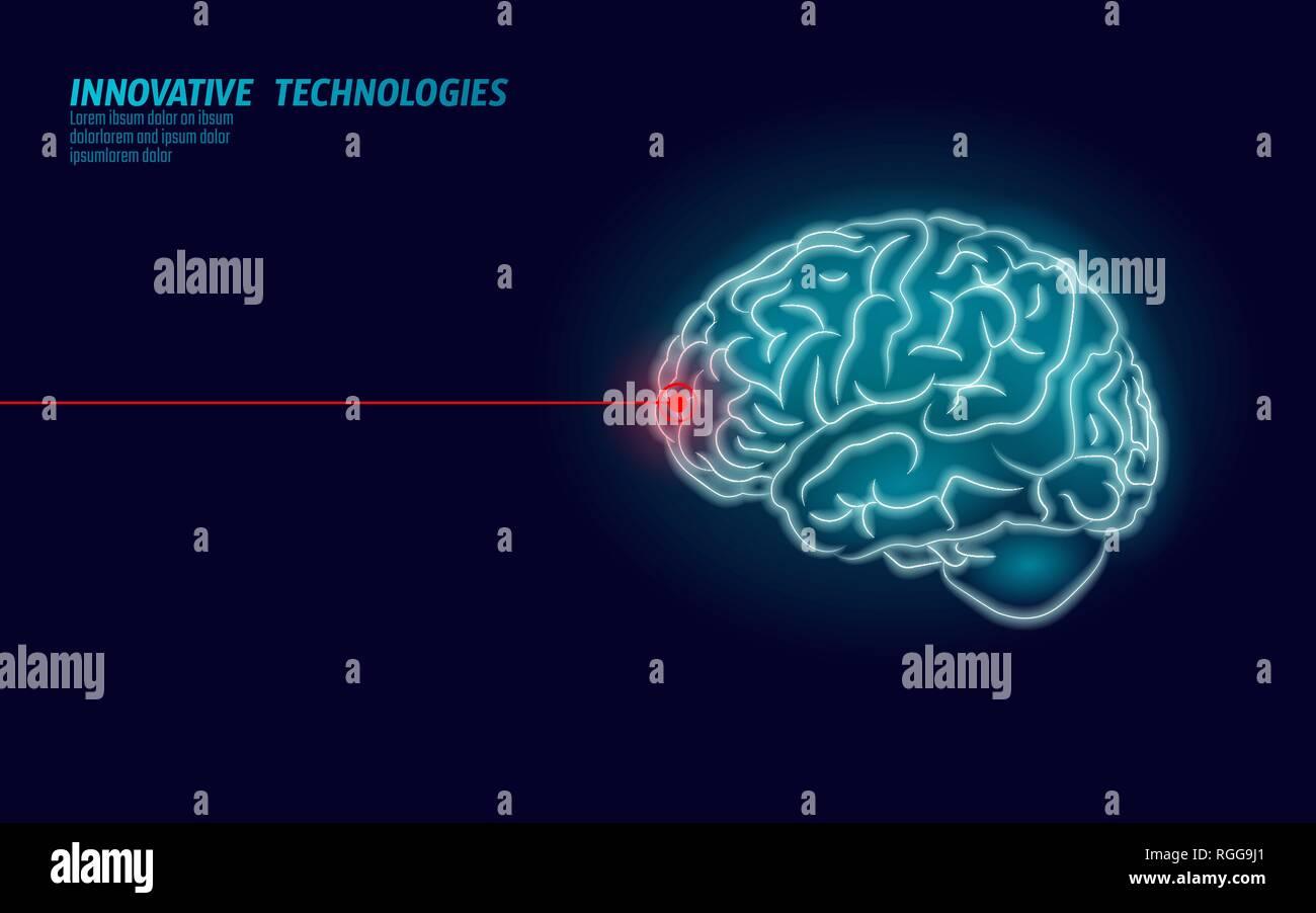 Laser surgeon brain treatment low poly 3D render. Drug nootropic human ability smart mental health. Medicine cognitive rehabilitation in Alzheimer Stock Vector