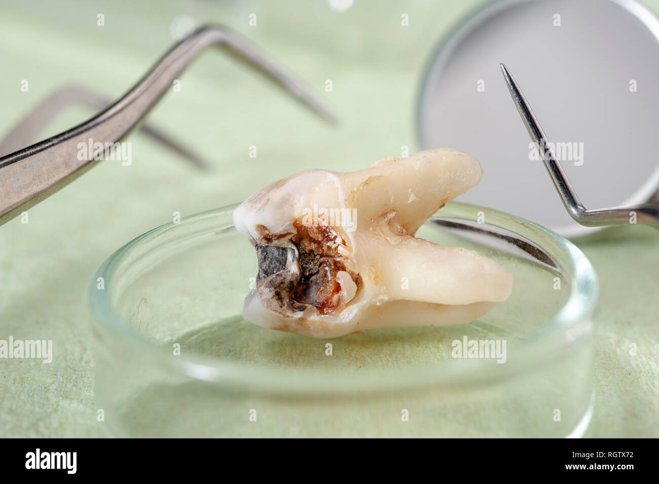 extracted molar tooth with caries and amalgam - Stock Image