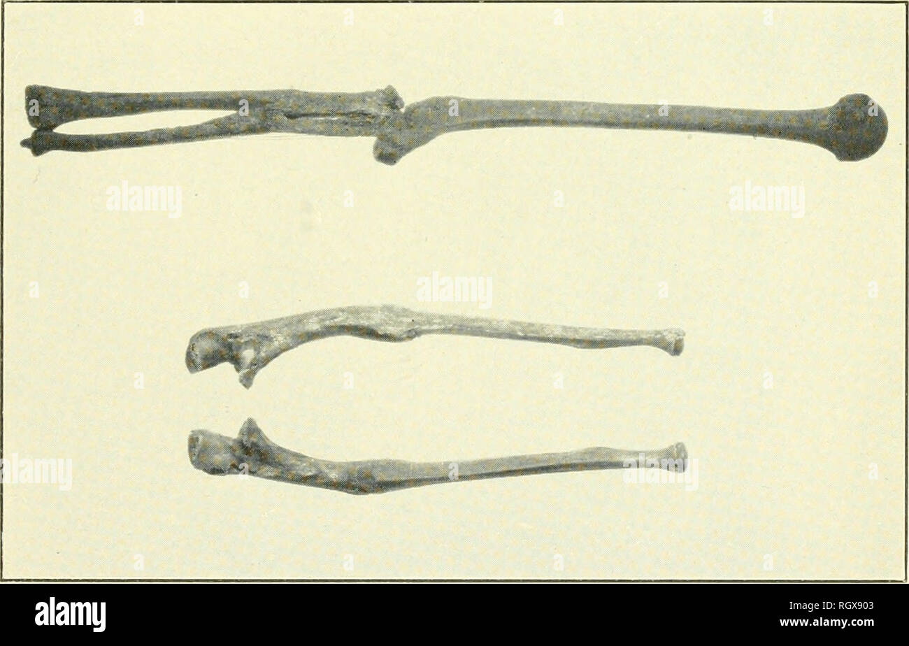 . Bulletin. Ethnology. a, Upper—Dislocate. elbow, Burial No. 20, Site Luo 86, Lauderdale County, Ala. right ulna. Burial No. 26, Lauderdale County, Ala. Lower--Exostosis of. b, L'pper—Dislocation of left elbow, Burial No. 37, Site Mg^' 2, Morgan County, Ala. broken, Burial No. 1, Lawrence County, Ala. Lower—Both ulna. Please note that these images are extracted from scanned page images that may have been digitally enhanced for readability - coloration and appearance of these illustrations may not perfectly resemble the original work.. Smithsonian Institution. Bureau of American Ethnology. Wash - Stock Image