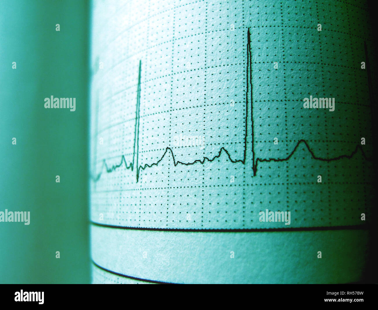 Sinus Heart Rhythm On Electrocardiogram Record Paper Showing Normal P Wave, PR and QT Interval and QRS Complex, EKG paper - Stock Image
