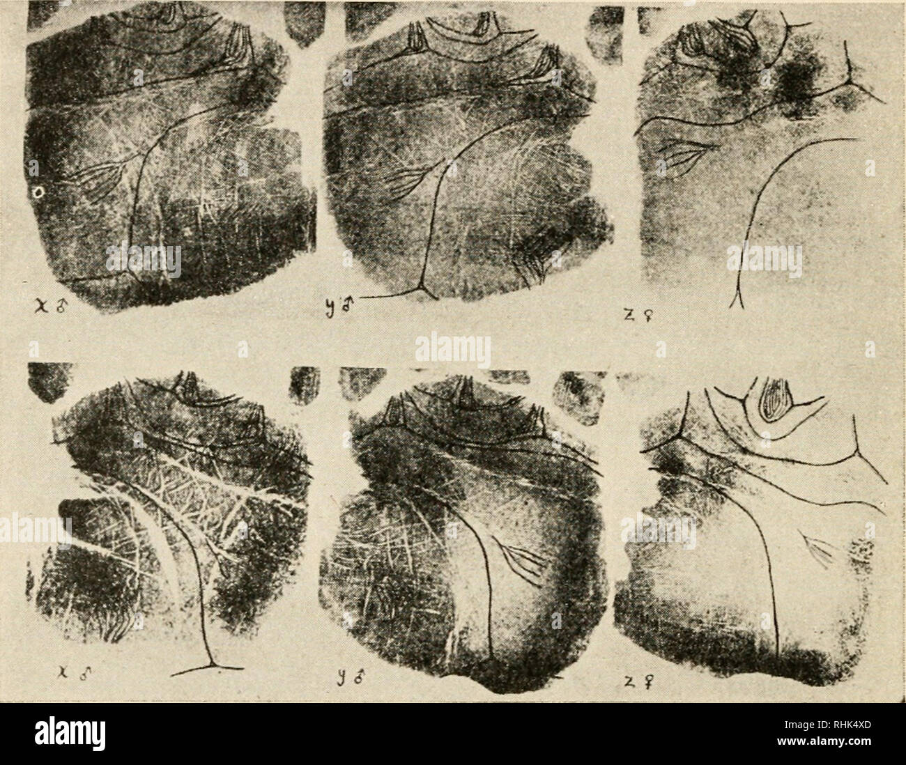 """. The biology of twins (mammals). Twins. 158 THE BIOLOGY OF TWINS demonstrate monozygotic origin, but lack of identity does not disprove the possibility of monozygotic origin. Wilder has illustrated certain very good cases of identity by means of photographs of palm- and sole-prints (see Fig. 52). The heavy lines are the lines of interpretation. Fig. 53.—Photograph (from Wilder) of the left (above) and right (below) palm-prints of a set of triplets. Note the close identity of the males, which are evidently """"identicals,"""" and the unlikeness of these to the female triplet on the right,  - Stock Image"""