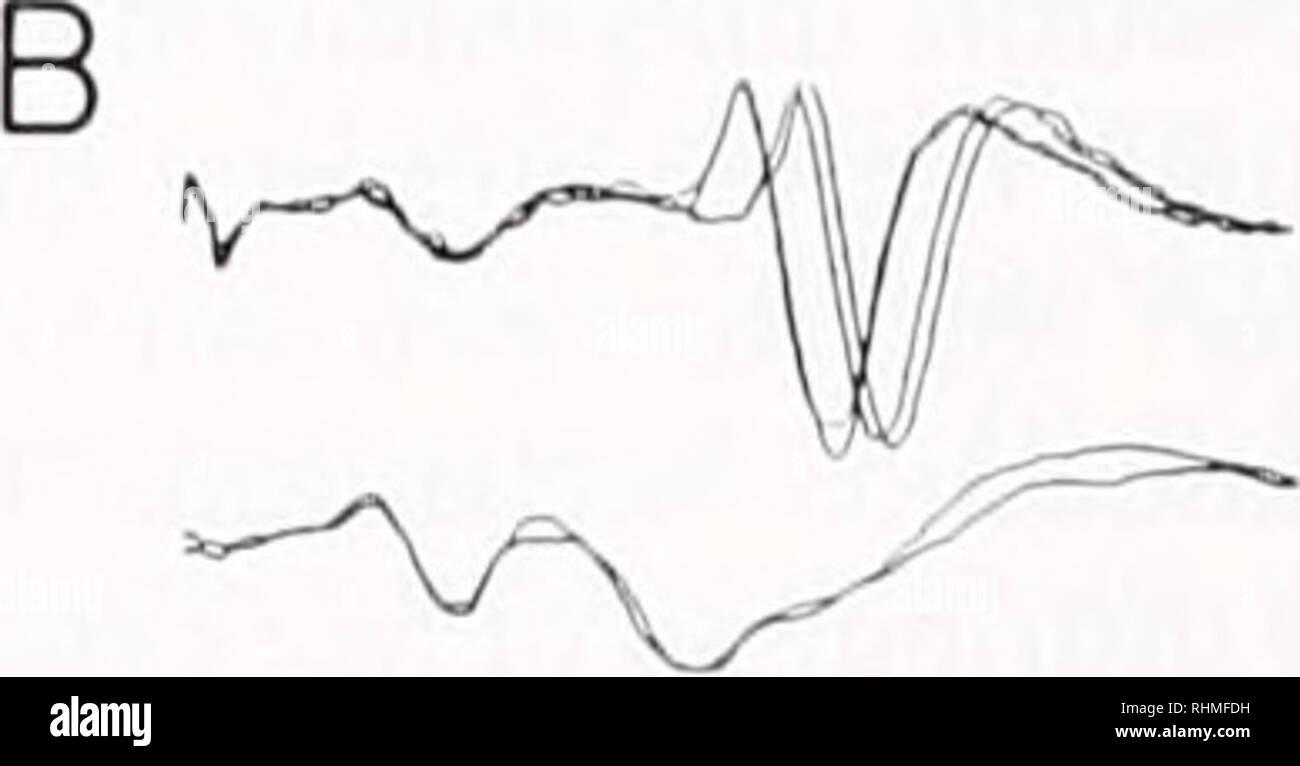Noise Suppression Stock Photos & Noise Suppression Stock Images - Alamy
