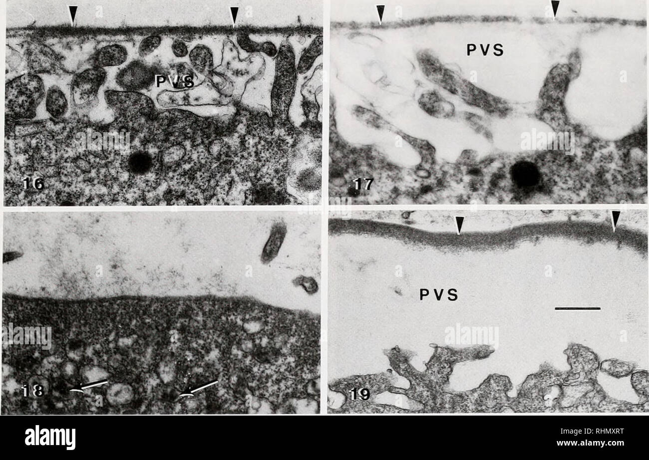 . The Biological bulletin. Biology; Zoology; Biology; Marine Biology. HATCHING ENVELOPE ASSEMBLY IN LOW SODIUM 91. Figures 16-19. A series of TEM micrographs showing effects of various substitutions on HE formation. Arrowheads = HE; PVS = perivitelline space. Bar = 0.5 ^m for all. Figure 16. A Trachypenaeus similia egg at 60 min showing the fluffy appearance of an incomplete HE in ChCl-substituted seawater. Figure 17. A Sicyonia ingentis egg at 70 min showing the fluffy appearance of an incomplete HE in ChCl-substituted seawater. Figure 18. A S. inffcniis egg at 60 in Tris-substituted seawater Stock Photo