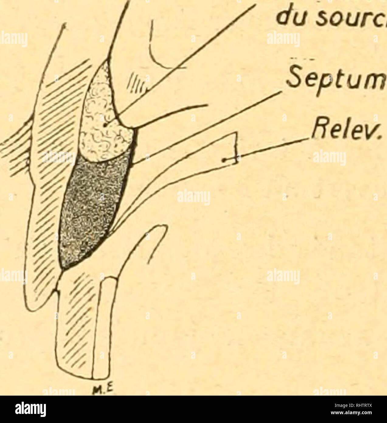 . Bibliographie anatomique. Human anatomy; Histology; Embryology, Human. Relev. Coussinet du sourcil. Fig. 2. â Injections superficielles. A. Injection aous-cutauée abondante simulant un Åil poché. L'injection faite en avant de l'orbiculaire a traveraé le muscle qui est noyé dans la masse. Une petite partie de l'injection, décolorée, a transsudé : en haut, en ar- rière du Â«eptiim orbitaire, le long de son accolemi-nt au releveur; en bas, en avant du tarse, B. Injection sous-mnsculaire danÂ« l'espace préseptal. L'injection, poussée en très petite quantité, est contenue entre le cou Stock Photo