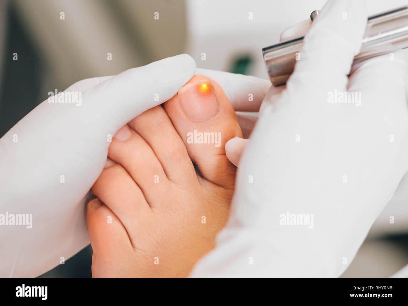laser treatment on toenail, fungal infection on the toenails - Stock Image