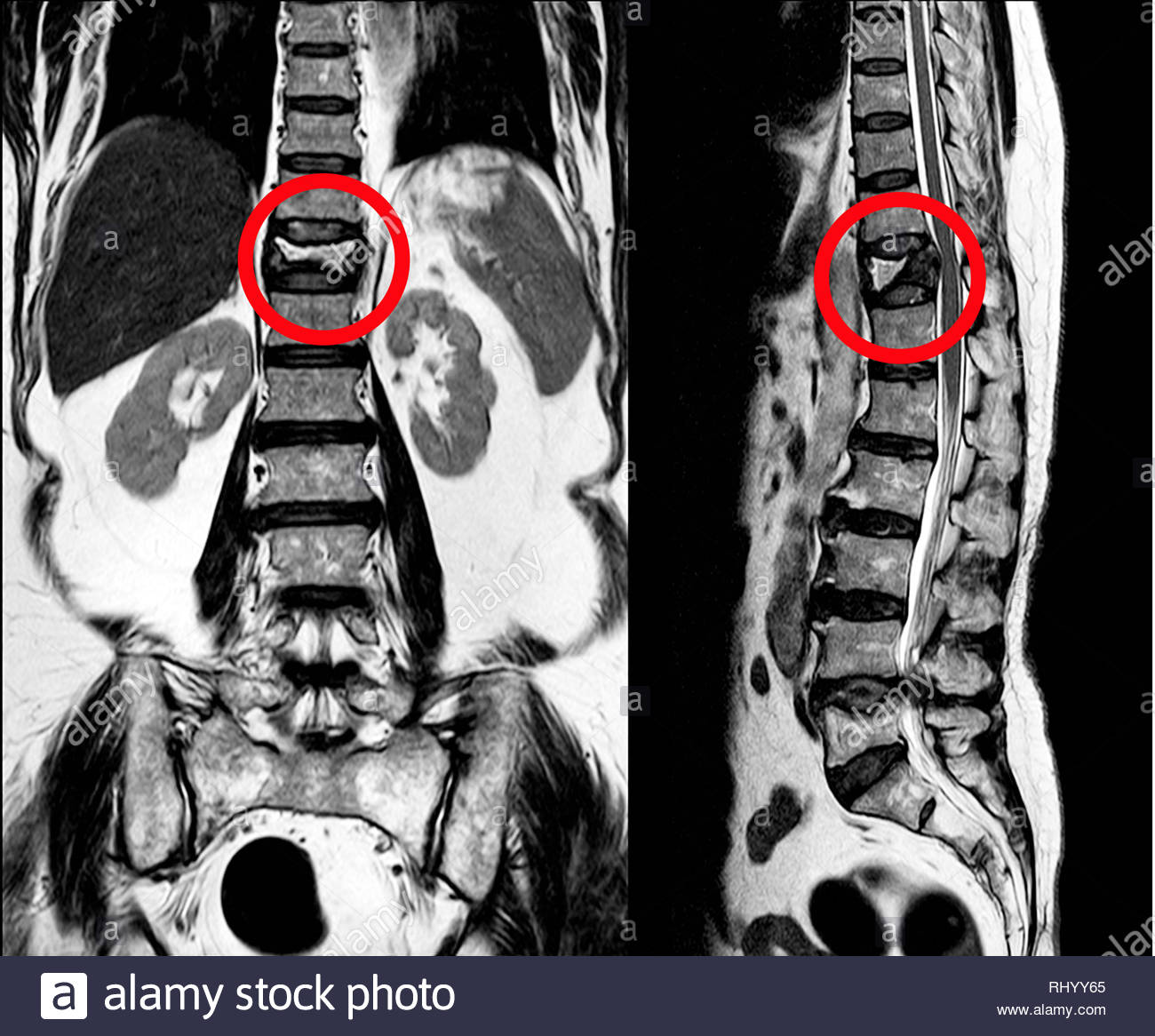 MRI Thoracic lumbar spine show moderate pathological compression fracture of T12 level. Stock Photo