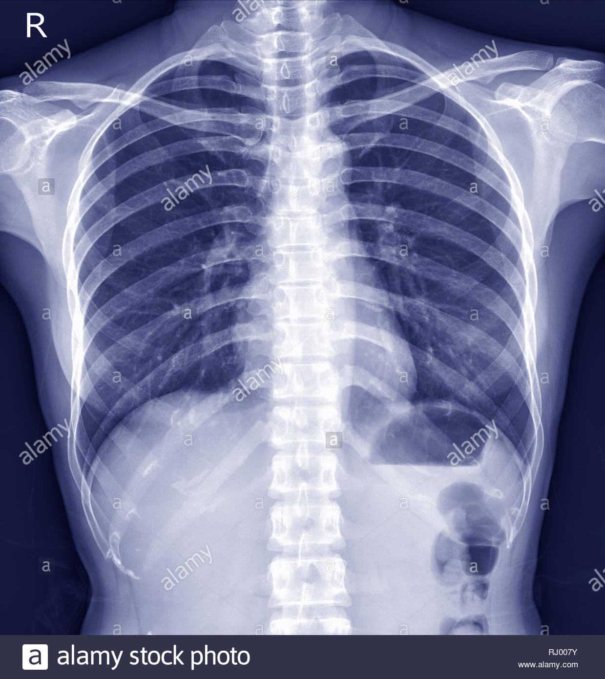 Chest x-ray There is no pulmonary infiltration.Normal heart size.Both costophrenic angles are clear. Intact osseous structure.Impression:- Normal ches - Stock Image