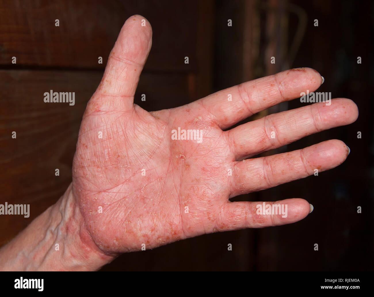 Acute Neurodermatitis respectively atopic eczema - Stock Image