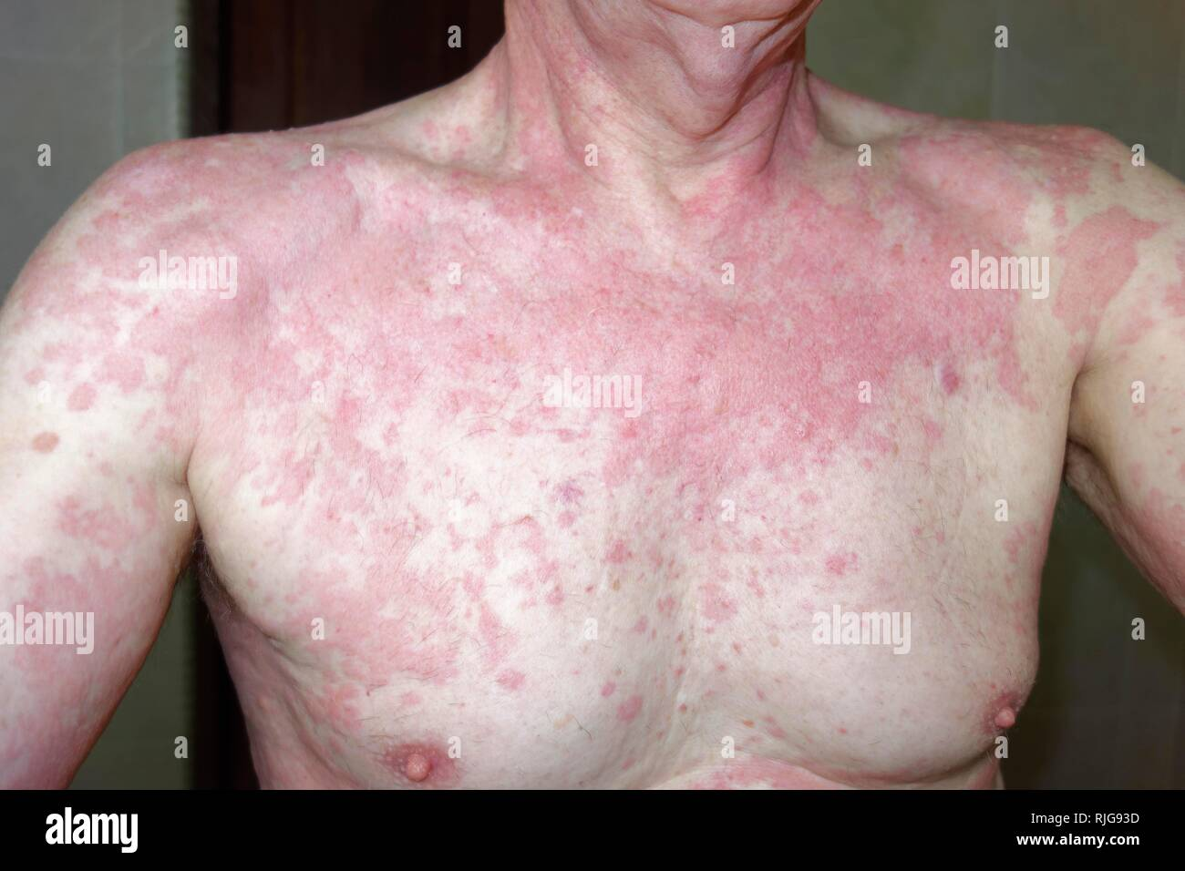 Man, 68 years old, with allergic reaction, skin rash, allergy, to insect repellent Baygon, Indonesia - Stock Image