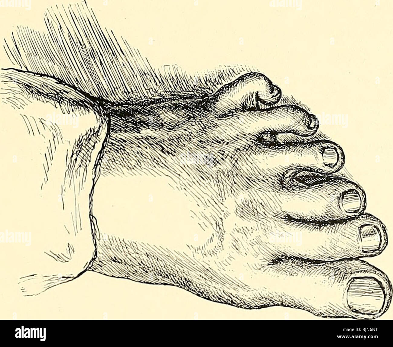 . The Bahama Islands. Scientific expeditions. Fig. 1.—FOOT affected with ainhum of little toe. Fig. 2.—left foot of samson rooker, .showing six toe.s VIEWS ILLUSTRATING SANITARY CONDITIONS. Please note that these images are extracted from scanned page images that may have been digitally enhanced for readability - coloration and appearance of these illustrations may not perfectly resemble the original work.. Shattuck, George Burbank, 1869-1934, [from old catalog] ed. New York, London, The Macmillan company - Stock Image