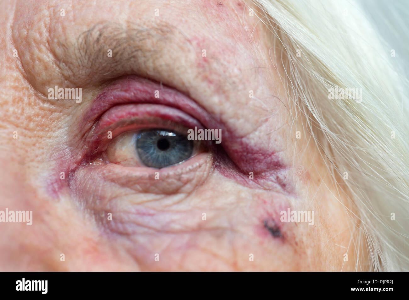 Self portrait with black eye, February 1st 2019 - Stock Image