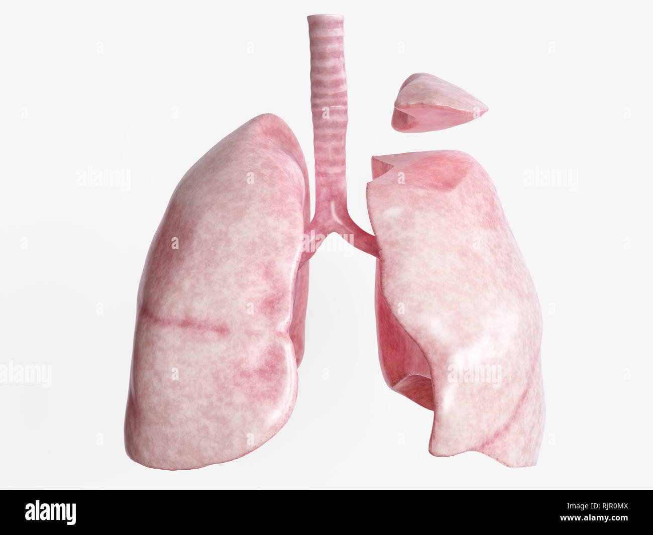Segmental resection after severe lung disease - 2 of 4 - 3D Rendering - Stock Image