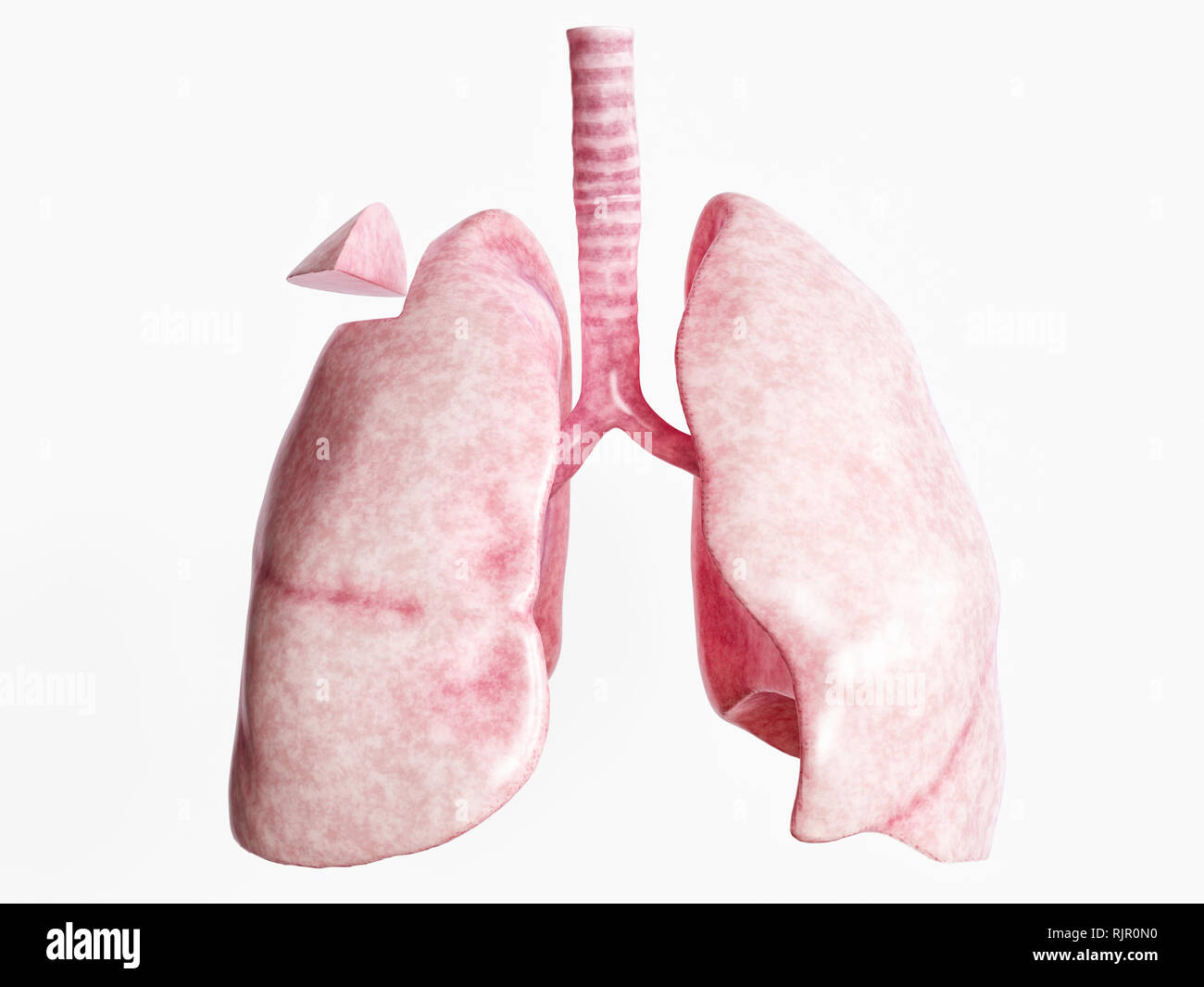 Wedge resection after severe lung disease - 1 of 4 - 3D Rendering - Stock Image