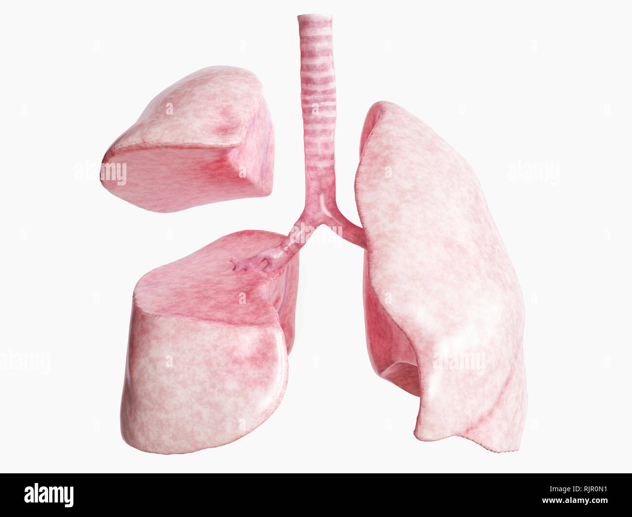 Lobectomy after severe lung disease - 3 of 4 - 3D Rendering - Stock Image