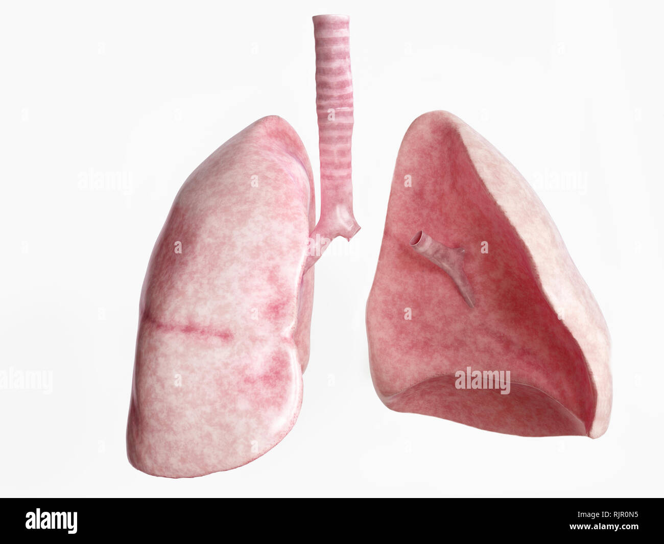 Pneumonectomy after severe lung disease - 4 of 4 - 3D Rendering - Stock Image