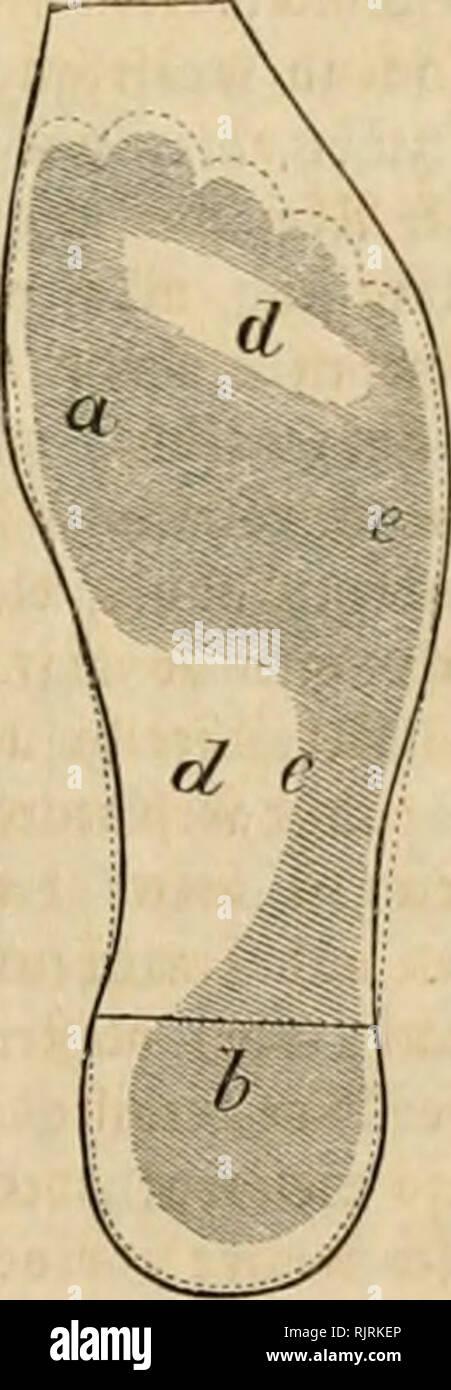 ". Aus der Heimath. Natural history; Natural history -- Germany. 1. Scbte ciucä »cbtsebittctcn S'uficö. — 2, Seble eine« turcb ^cll £clnih vcrfiiU'pelten ^upcS. — 3. iNCiliiiltnij) tn Äiiüfoblc jur cinbiiUii^cn Stiefclfoblc, a SJjflcn ^cr jucifcii ,^ci)c, b S^aäe ctn (Scrff- c Der liiijicrc Jyujivaiir, d d €tcncn »0 tcr guü ff"" '-ücircii niclit bcnibrt, e Sauen tcr tlcincn 3f^f- — 4. Sohle eines rem JvnÜf (ingfV'aBtcn äwcibäUigcii Sd^ube», iSudjftiibcn »ie rcrbcr. »ergcbli(^ fäm^jfen. %i, bie 2)ummt)eit, gegen bie id) ief?t meine f^arf gefpi^te, in fdjirarjeä 93[ut gctaudjte 9Baffe fe^re,  - Stock Image"