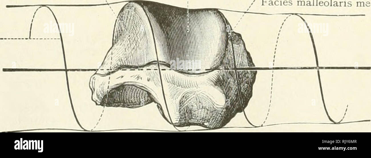. An atlas of human anatomy for students and physicians. Anatomy. Third phalanx Phalanx III. Distal interphalangeal articulation Articulatio digiti distalis Third phalanx. Phalanx III. Axes of flexion of the inter- phalangeal articulations Fig. 384.—Extension. Posterior Aspect. Fig. 385.—Flexion. Lateral Aspect. dlarthrosls (metacarpo-phalangeal articulation').—glnglymus, or hlnge joint (Articulations of the Fingers). External malleolar surface Facies malleolaris lateralis Superior articular surface of the astragalus Facies superior trochlese tali Internal malleolar surface / Facies malleolari - Stock Image