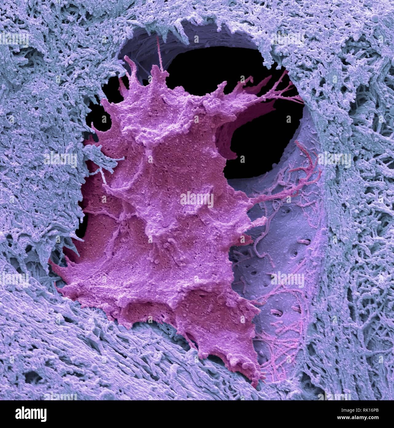 Osteocyte bone cell, SEM - Stock Image