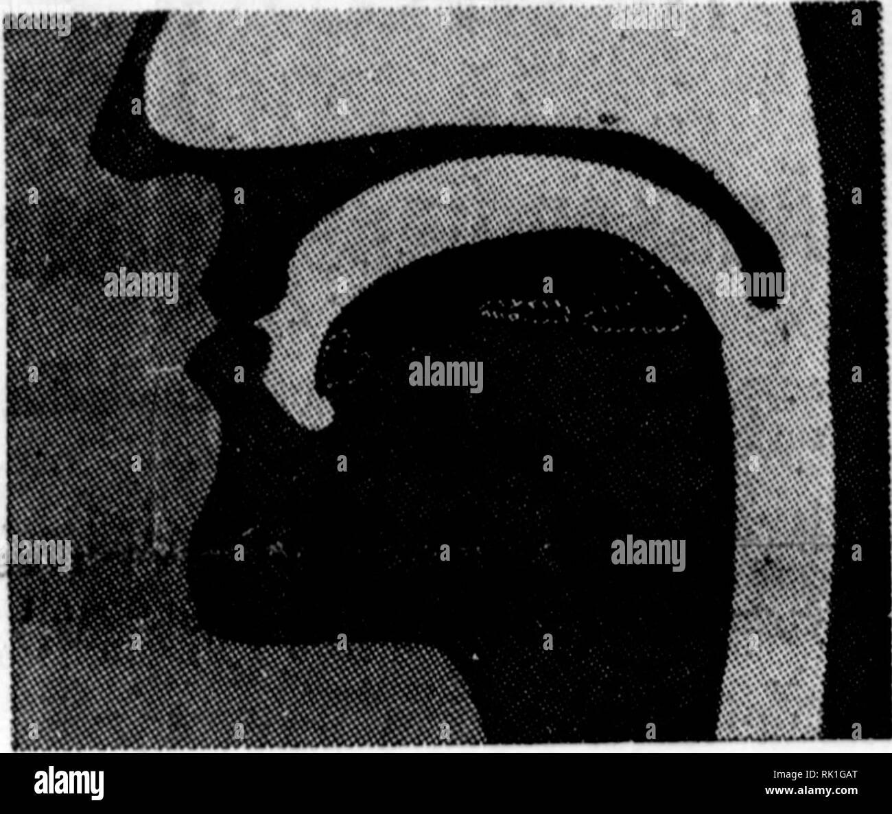 bilaterale brust knospen