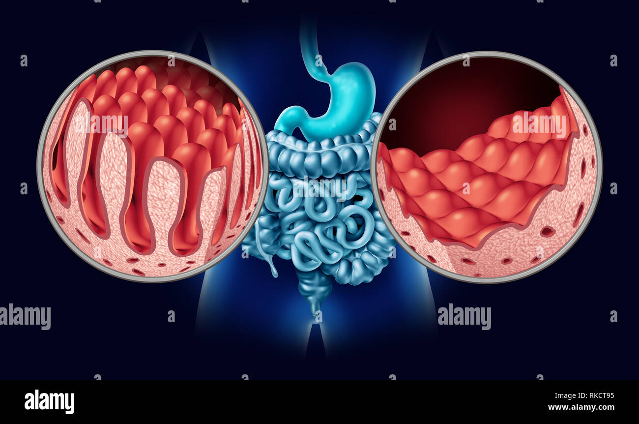 Celiac or coeliac disease as an intestine anatomy medical concept with normal villi and damaged small bowel lining as an autoimmune disorder. - Stock Image