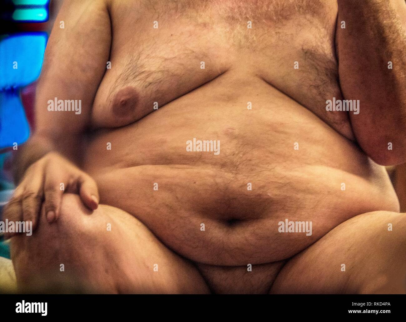 Obesity. Obesity is a medical condition in which excess body fat has accumulated to the extent that it may have a negative effect on health. People Stock Photo