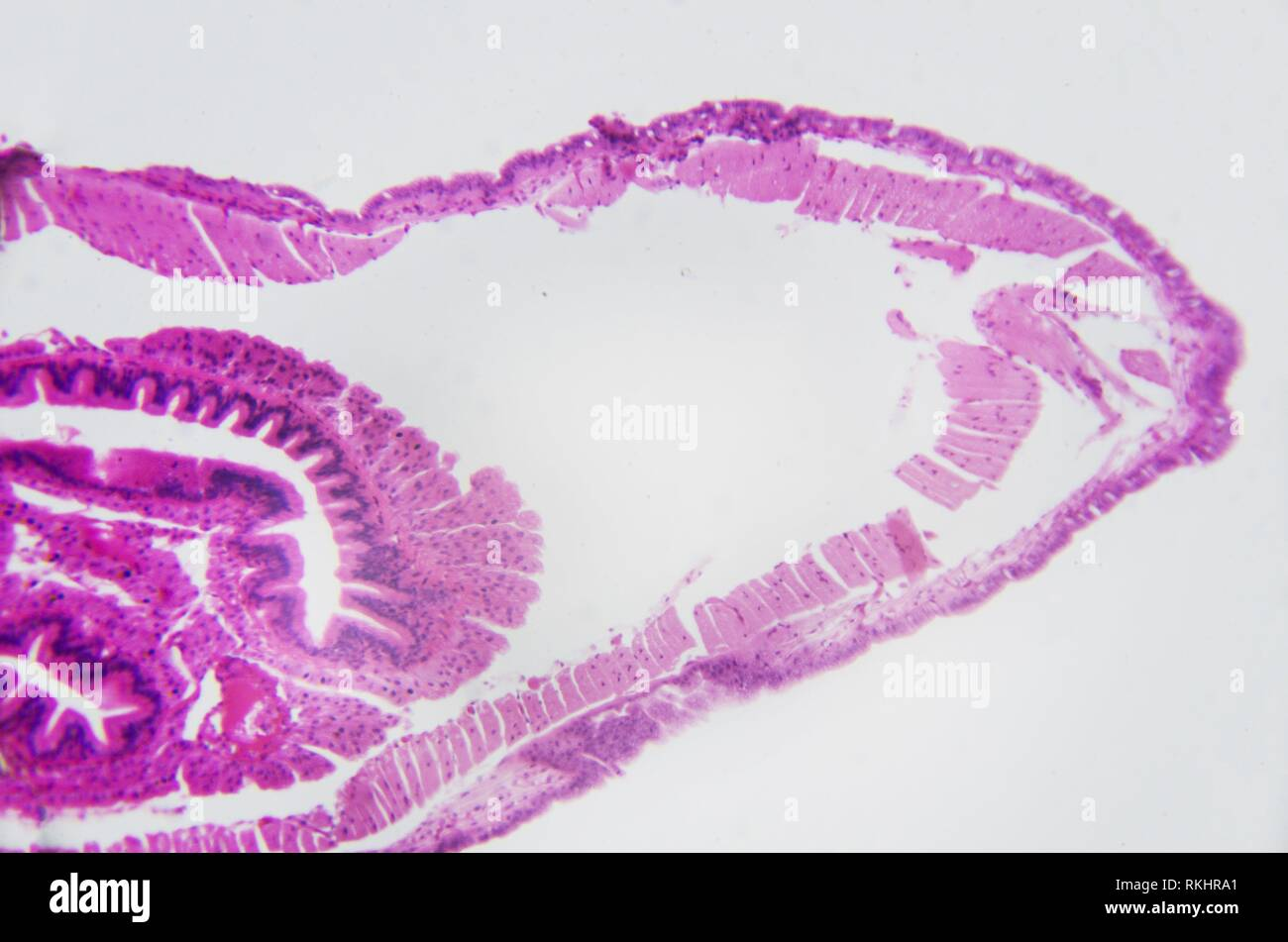 Microscopic photography. Earthworm, transversal section. - Stock Image