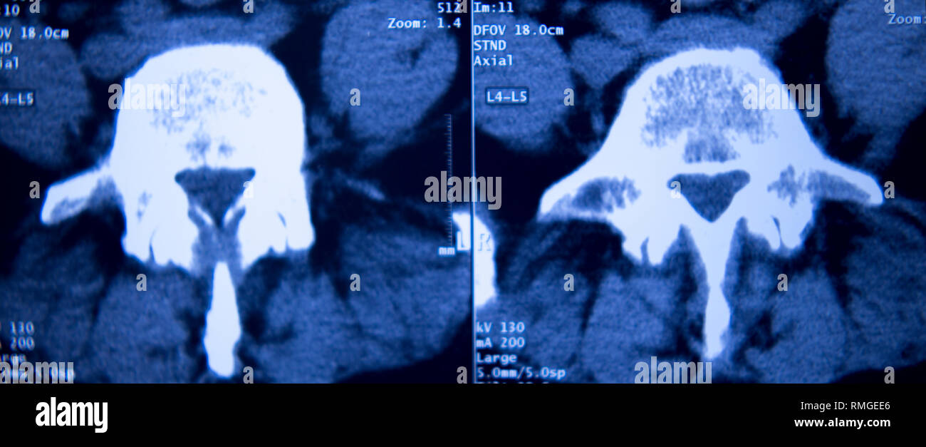 Medical hospital x-ray hips spine pelvis MRI traumatology scan. - Stock Image