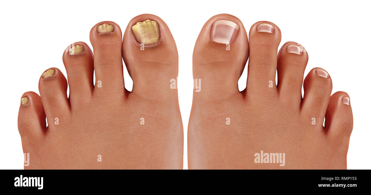 onychomycosis and fungal nail infection or tinea unguium as an infected  foot toenail or toe nail