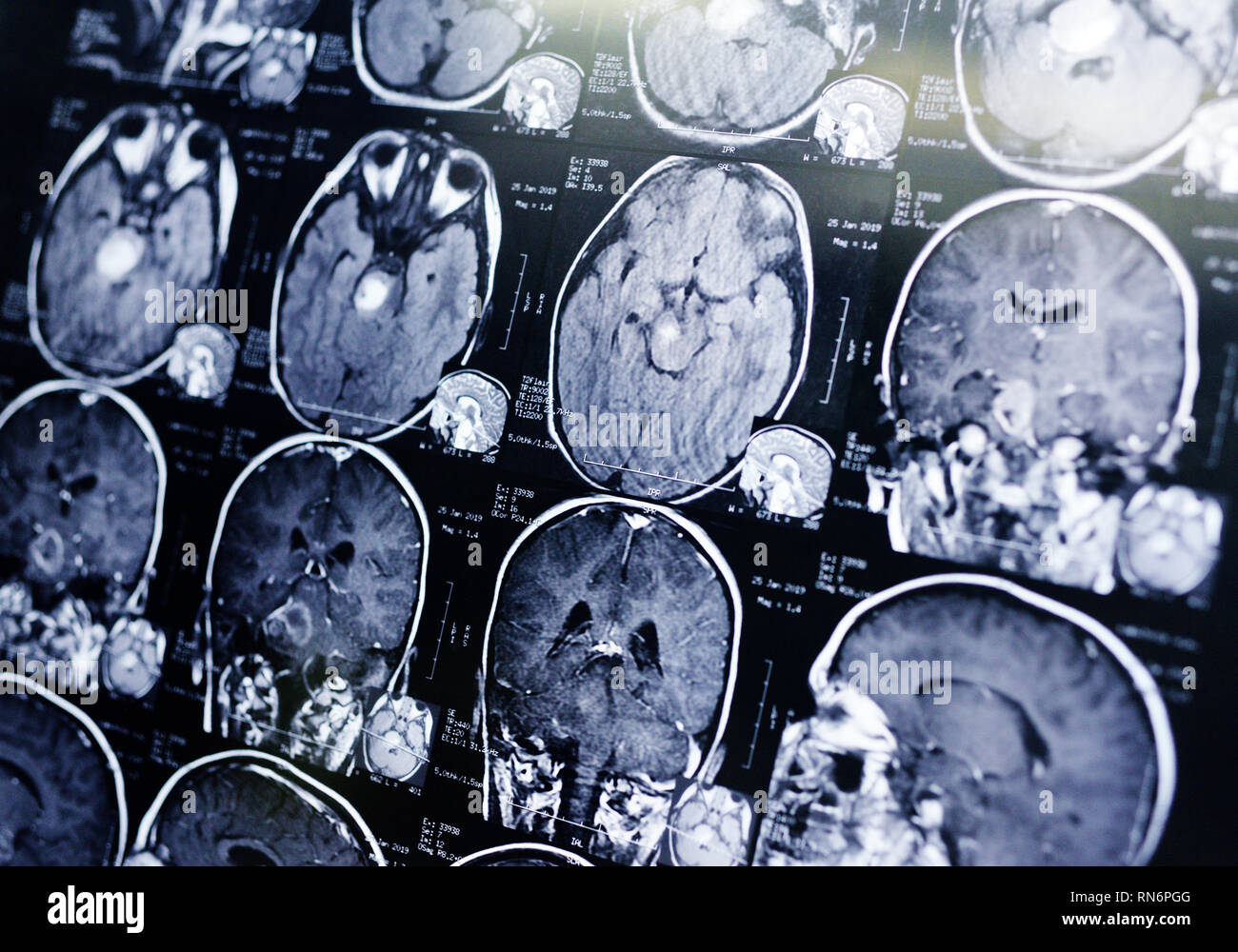 MRI scan of a patient with a tumor in the brain stem.  - Stock Image