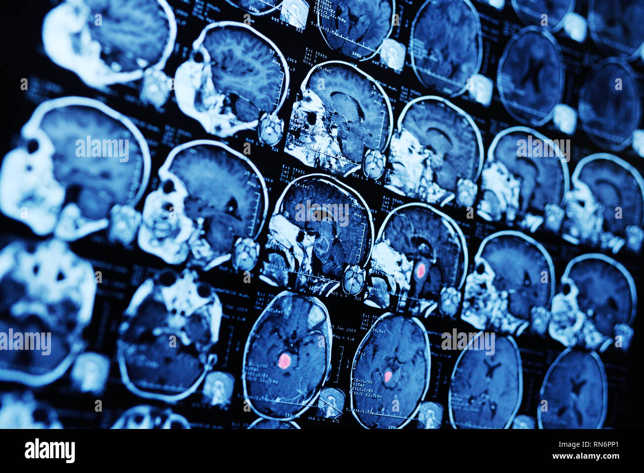 MRI magnetic resonance image scan of a patient with a tumor in the brain stem. - Stock Image