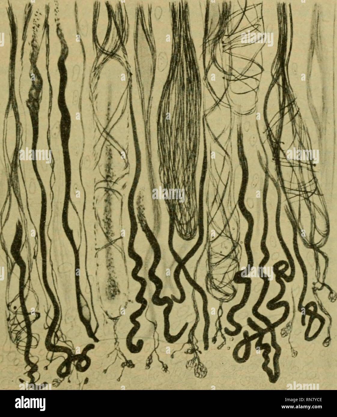 """. Anatomischer Anzeiger. Anatomy, Comparative; Anatomy, Comparative. 227 ahmen. In den Mitteilungen des Frankfurter physikalischen Ver- eins von 1865 hat Böttger als solche ,,baum- und strauchartige Metallsalz-Vegetationen"""" beschrieben, welche nach Einbringen verschiedener Metallsalzkristalle in Wasserglas in jenem sofort aus- wachsen. Eine ganze Literatur ist darüber erwachsen. Die Mor- phologie hat davon besonders Notiz genommen, als Leduc durch . Fig. 3 (zu vgl. mit Fig. 2). Aus dem zentralen Ende eines vor 50 St. durch- schnittenen Nerven. Nach S. R. y Cajal. solche SiUkatgewächse di - Stock Image"""