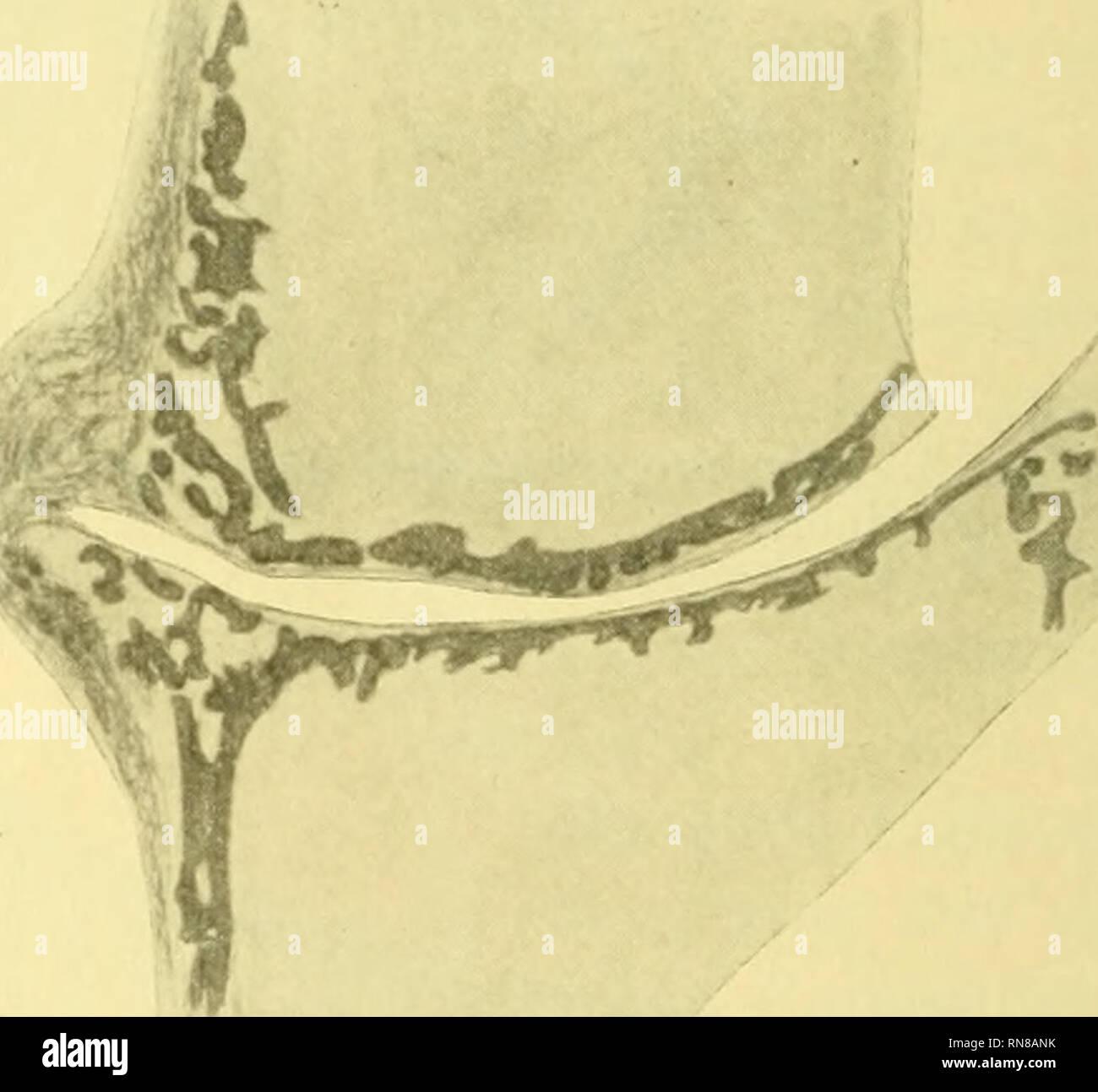 . Anatomischer Anzeiger. Anatomy, Comparative; Anatomy, Comparative. Fig. 5. Fig. 6. Fig. 5. Zonometapterj^gialgelenk aus Fig. 4. 72 X vergrößert, auf ^/^ ver- kleinert. Fig. 6. Linke Seite des Zonometapterygialgelenks, Eaja clavata, erwachsen. 13 )«( vergrößert, auf ^/^ verkleinert. ebenfalls Kalk aufgetreten. Die Tatsache, daß Knorpel nochmals über dem Kalk liegt, war schon Leydig (1. c. p. 8) bekannt, und zwar vom Occipital- und Kiefergelenk der Rochen. Es scheint also eine allge- meine, die Rochen gegenüber den Haien auszeichnende Eigentümlich- keit zu sein. Die Rochen sind jüngeren Urspru - Stock Image