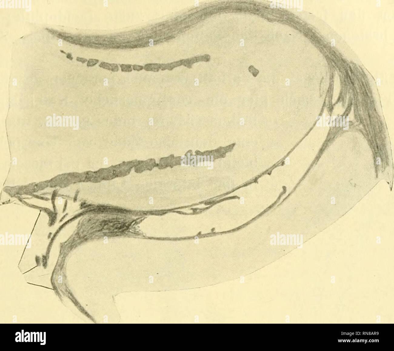 . Anatomischer Anzeiger. Anatomy, Comparative; Anatomy, Comparative. man die Kalkplattenlage stets frei und sehr zart auslaufen, die eigent- liche Gelenkfläche dabei frei lassend (Fig. 2), Der gleiche Befund. Fig. 3. Zonopropterygialgelenk, Mustelus laevis, erwachsen. 20 X vergrößert, auf ^/^ verkleinert.. Please note that these images are extracted from scanned page images that may have been digitally enhanced for readability - coloration and appearance of these illustrations may not perfectly resemble the original work.. Anatomische Gesellschaft. Jena : G. Fischer - Stock Image