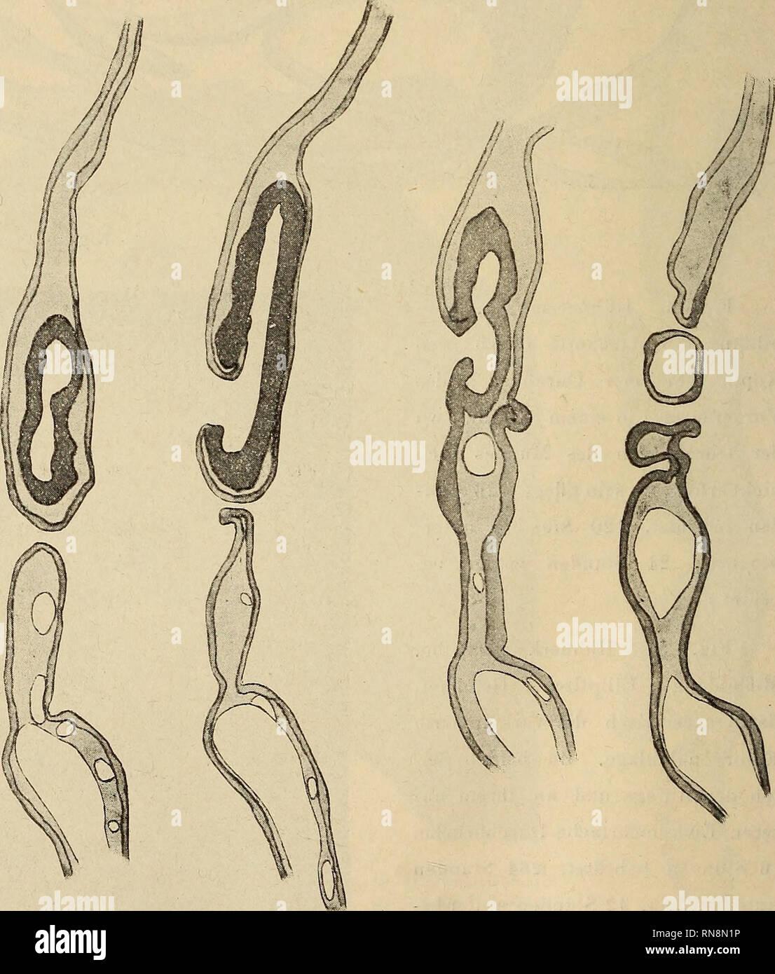 . Anatomischer Anzeiger. Anatomy, Comparative. 144 Öffnung noch nicht haben konnte. Den merkwürdigsten Fall von ab- normen Durchbrüchen habe ich an einer verkümmerten Embryonal- anlage beobachtet, die Fig. 5 in toto darstellt. An dieser im Ganzen 48 Stunden bebrüteten Embryonalanlage, an der von Primitivorganen nur das merkwürdig gestaltete, teils offene, teils geschlossene Medullar- rohr zu erkennen ist, zeigen sich nicht weniger als 7 Durchbruchsstellen, von denen zwei hinter der eigentlichen Embryonalanlage sich befinden. Fig. 6 a—e zeigt eine Reihe von Querschnitten durch diese abnorme Emb - Stock Image