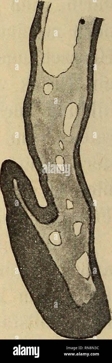 . Anatomischer Anzeiger. Anatomy, Comparative. Primitivstreif Fig. 2. Hühnerembryo, Mißbildung. Abnormer Durchbruch im vordersten Teile der Medullar platte bei x. (24 Stunden bebrütet, 128 Stunden unterbrochen, 7 Stunden weiter bebrütet.) Fig. 3. Querschnitt durch die Gehirnanlage des Embryo Fig. 2 entsprechend der Stelle x. Abnormer Durchbruch in der Medianlinie.. Please note that these images are extracted from scanned page images that may have been digitally enhanced for readability - coloration and appearance of these illustrations may not perfectly resemble the original work.. Anatomische - Stock Image
