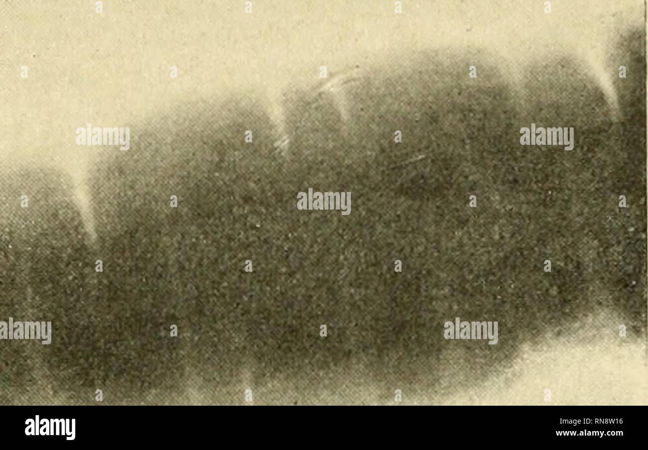 anatomische hefte fig 3 rontgenphotographie des gipsabgusses seminulares entsprechen